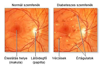szemfenék és magas vérnyomás