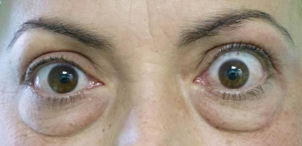 látó szemhéjak a felső szemhéj ptosisa