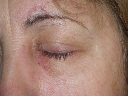 szemhéj sérülés kezelése