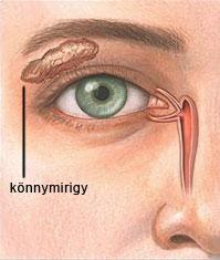 szemészet: száraz szem-szindróma)